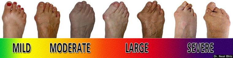 bunion-scale